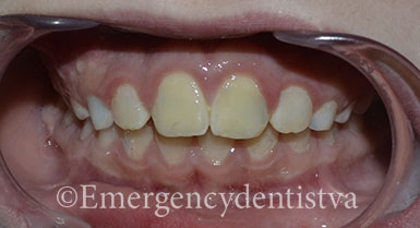 AVULSED TEETH-ACCIDENT-AFTER